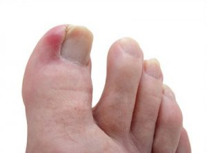 Gentle ingrown toenail treatment Parramatta