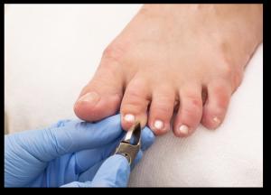 Best podiatrist for ingrown toenails