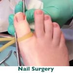 Ingrown nail surgery Parramatta