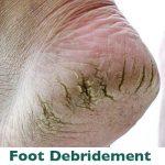 Foot debridement podiatrist Parramatta